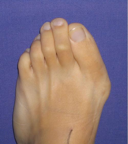 ccf757bd9 Kužele na nohách palca: fotografie, príznaky a štádiá vývoja ochorenia