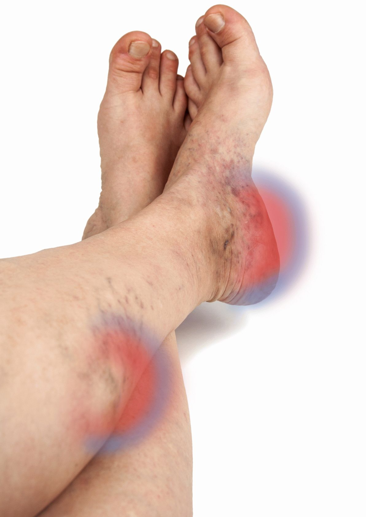 Varikoz damarları nasıl tedavi edilir: temel yöntemler