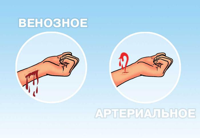 Кровотечение из варикозно-расширенных вен нижних конечностей. Кровотечение из варикозно-расширенных вен пищевода – лечебная тактика